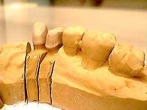 Abnehmbare brücke in dental d